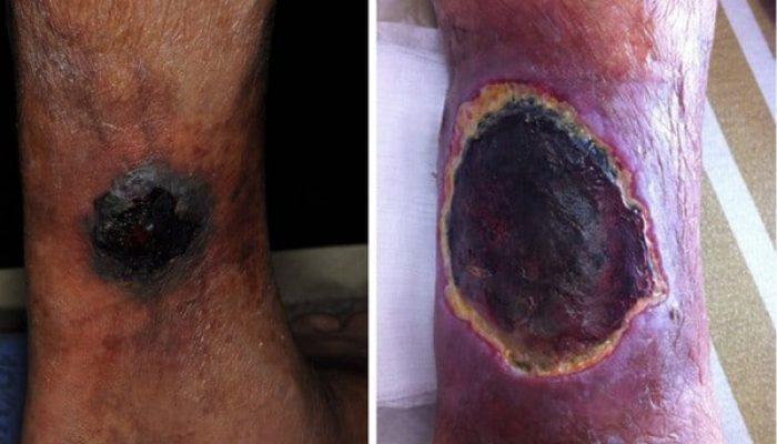 Mucormycosis Skin