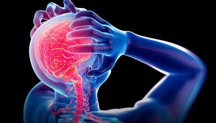 migraine 3